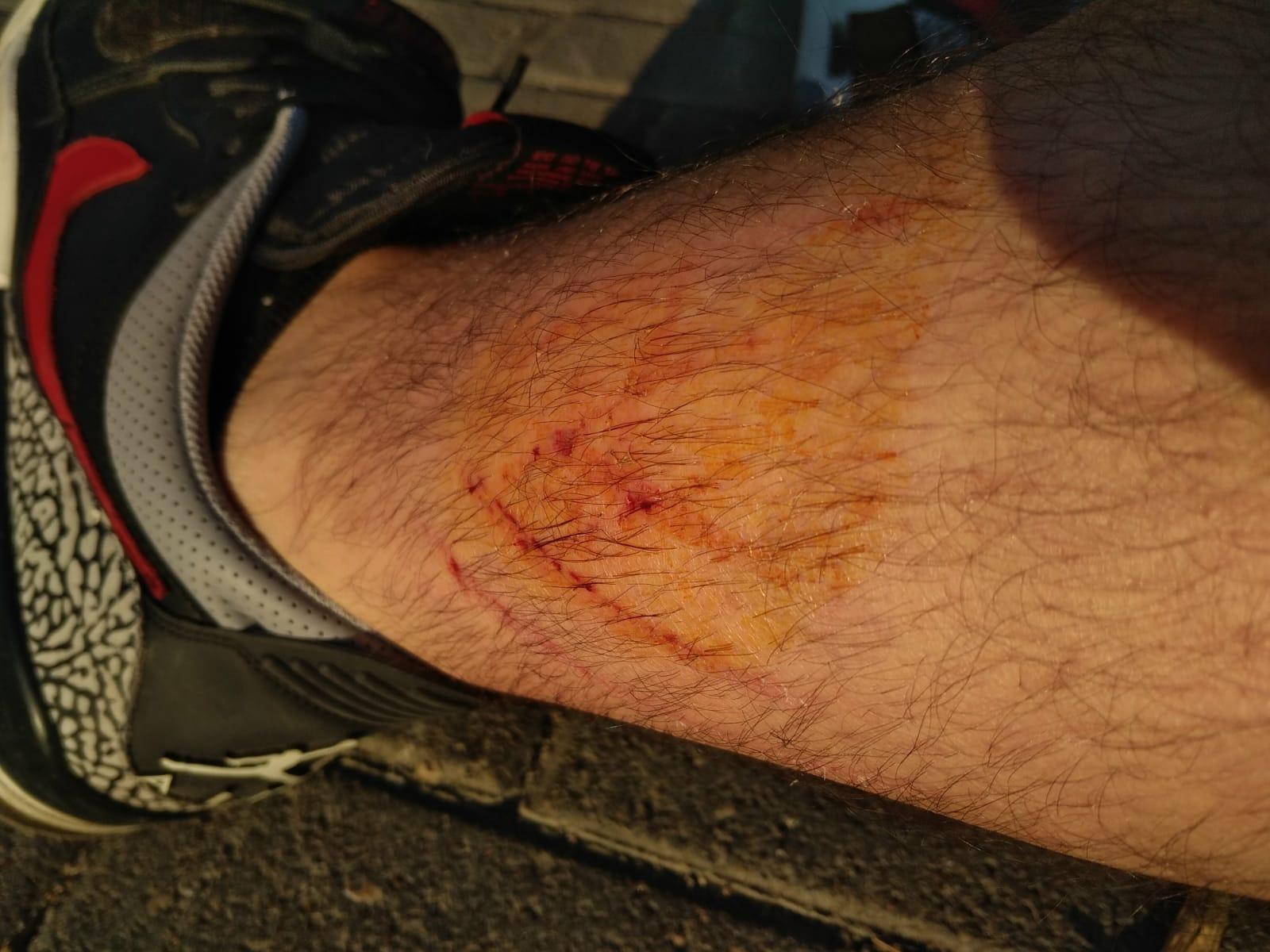 Una de les ferides del vigilant del metro agredit per un passatger a l'estació de Paral·lel / SPS