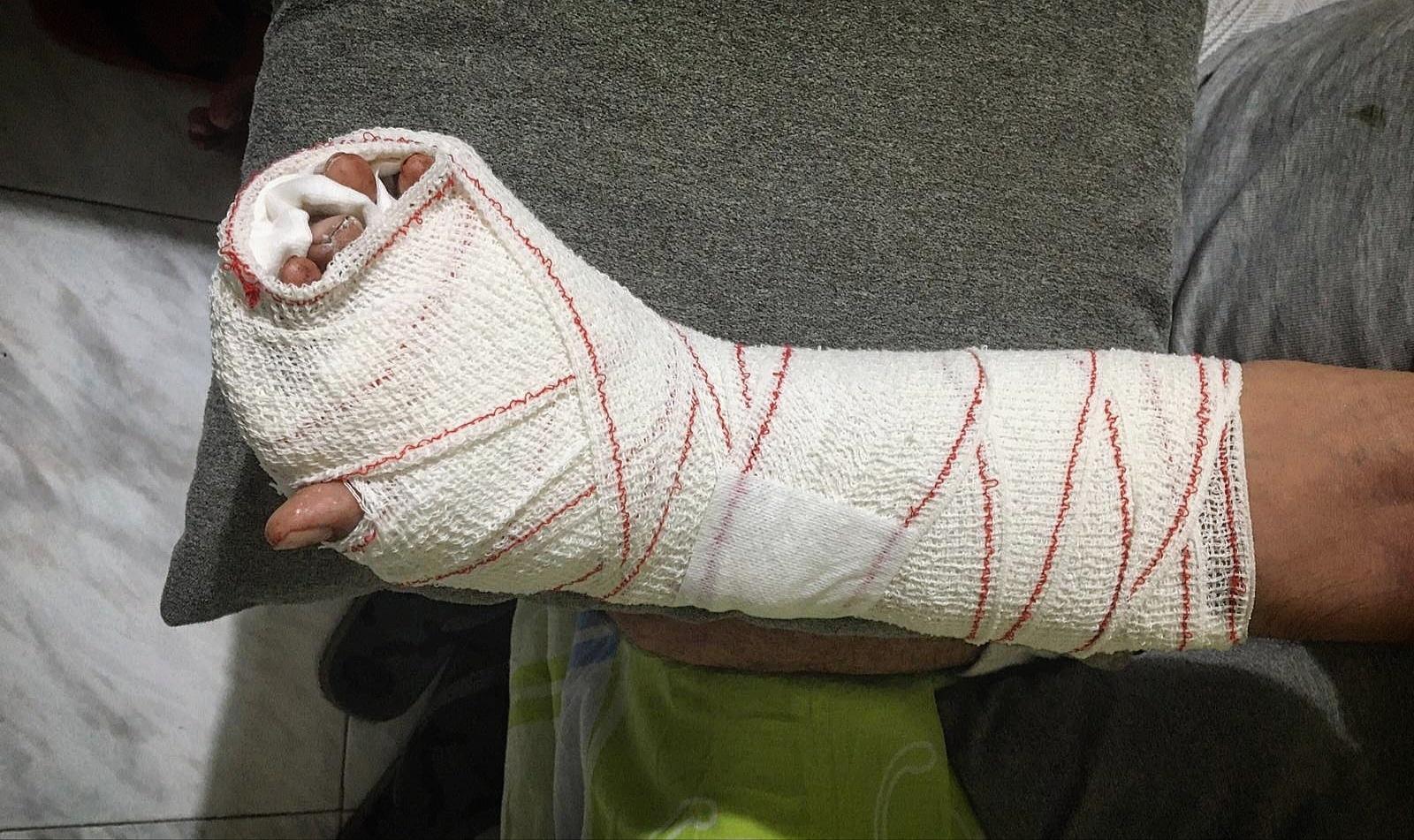La mà embenada de l'home a qui van tallar tres dits, després de ser atès a l'hospital / Cedida